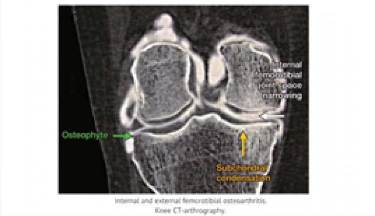 Pathophysiology of osteoarthritis