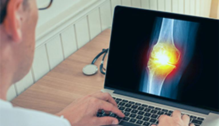 Osteoarthritis diagnosis with standard X-rays